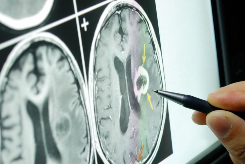 Comment le cerveau nous fait-il percevoir différents niveaux de douleur?
