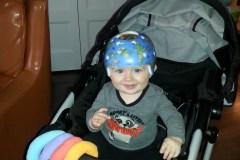 De plus en plus de bébés traités pour la «tête plate»