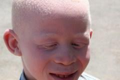 Yohana Bahati, 18 mois, démembré parce qu'albinos