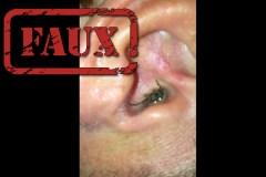Cette vidéo virale d'une araignée qui sort d'une oreille est un canular