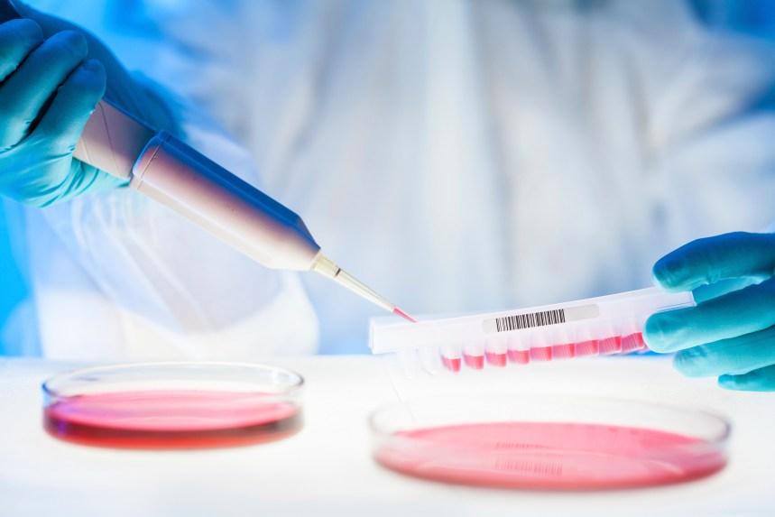 Le gène menant au cancer identifié par des chercheurs montréalais