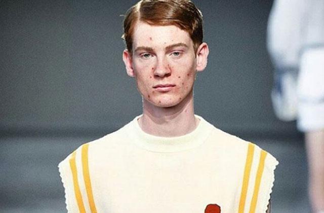 Un designer utilise des mannequins avec de l'acné pour son défilé
