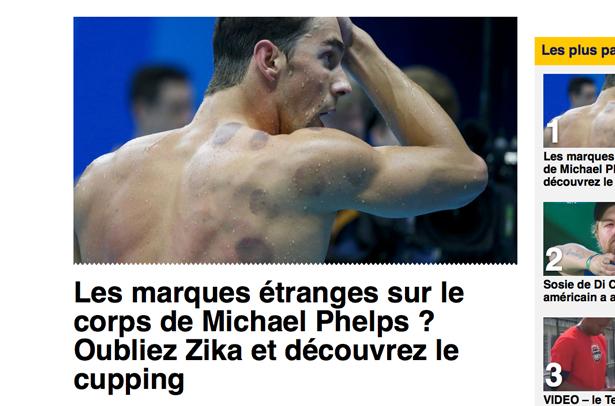 Le «cupping»: quand des athlètes olympiques (et les médias) font la promotion de la pseudoscience