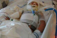 Aspergé d'essence puis brûlé, un enfant repose dans le coma