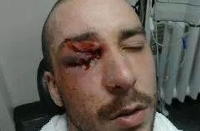 Printemps érable: un manifestant blessé à l'œil obtient gain de cause contre la Ville