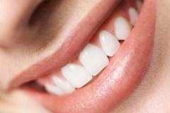 3 trucs pour avoir de belles dents