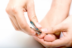 Cinq trucs pour prévenir et traiter un ongle incarné