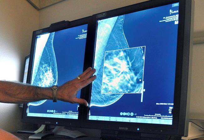 Mammographie: les femmes partagées sur le test de dépistage