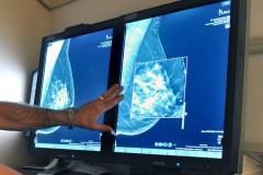 Des chercheurs de Québec progressent face au cancer du sein