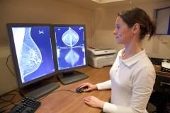Pourquoi un cancer du sein récidive-t-il? Une étude tente de mieux comprendre