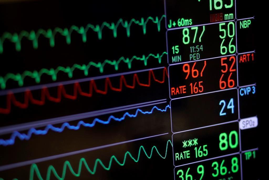 L'exercice physique profiterait aux patients atteints d'insuffisance cardiaque