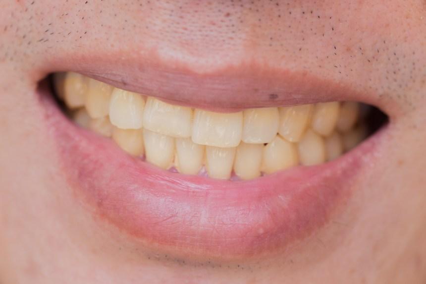 Une mauvaise hygiène dentaire pourrait accroître le risque de cancer du foie de 75%