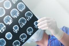 Provoquer des crises d'épilepsie pour les faire disparaître