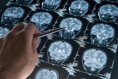 Un test sanguin dépisterait l'alzheimer 20 ans avant les pertes de mémoire