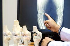 Ostéoporose: le nombre de cas en baisse au Québec, mais cela signale peut-être des lacunes