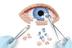 Santé : Cinq choses à savoir sur les cataractes