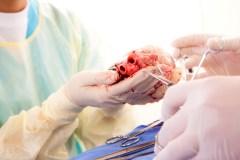Une 500e greffe cardiaque à l'Institut de cardiologie de Montréal