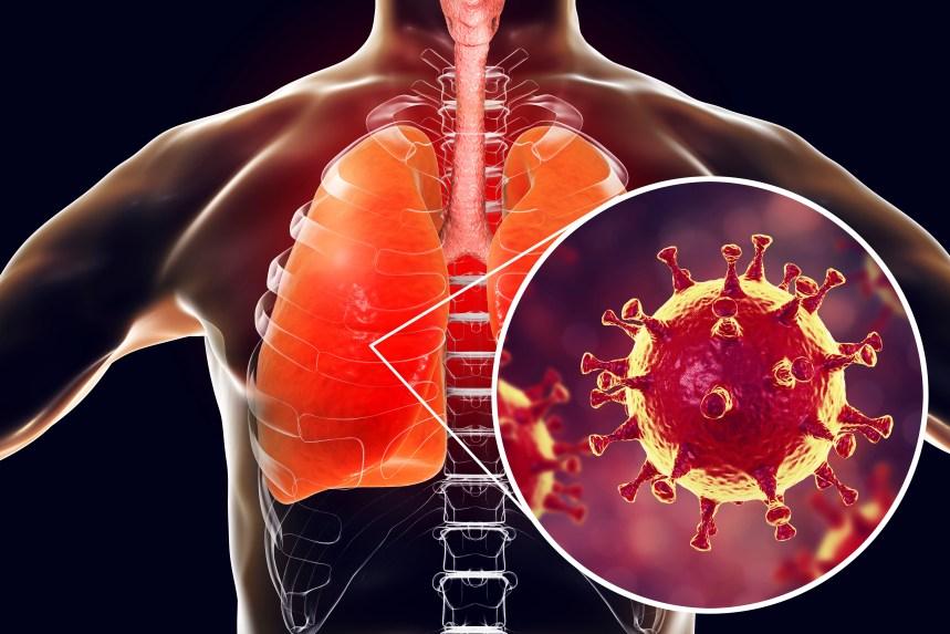 À quoi s'attendre lorsque l'on est atteint du coronavirus