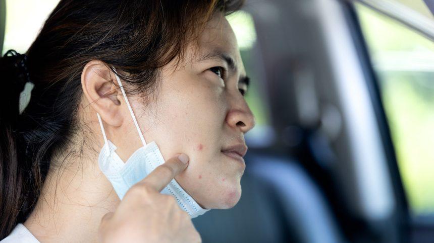 «Maskne», une forme d'acné causée par la pandémie