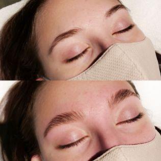Lamination des sourcils : avant et après