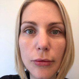 Trois jours après les injections aux lèvres