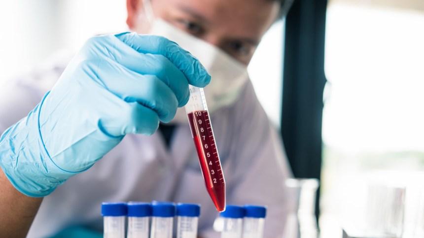 Le VIH, une autre épidémie en parallèle
