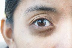 Atténuer les cernes sous les yeux
