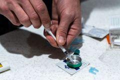 Opioïdes: les Québécois de plus en plus conscients de la problématique